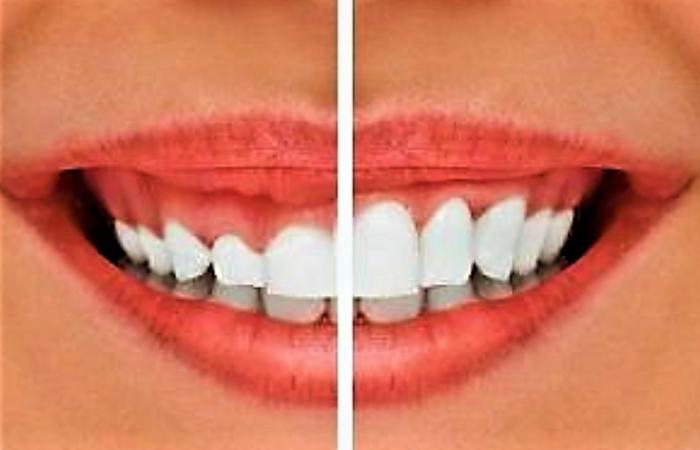 cirurgia estética do sorriso gengival estética orofacial dentista aldeota montese parangaba fortaleza