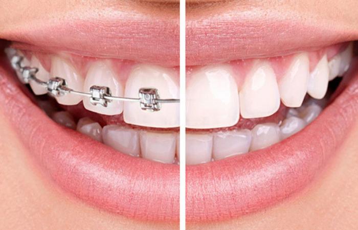 dentista ortodontia aparelho ortodôntico colorido estético cerâmica e safira e metálico com elásticos coloridos meireles montese parangaba fortaleza